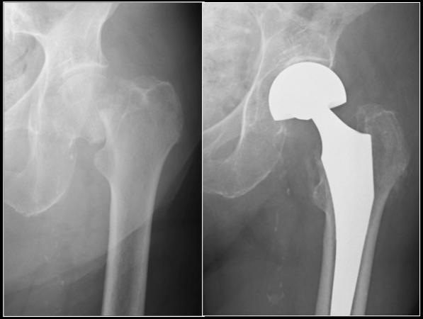 Radiografia di Protesi anca su frattura di femore prossimale